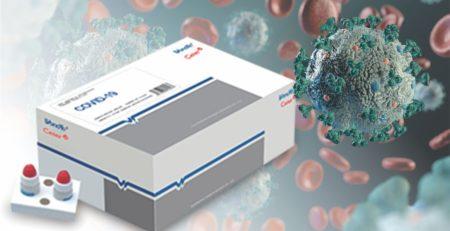 Parecer técnico e orientação para o teste rápido de coronavírus